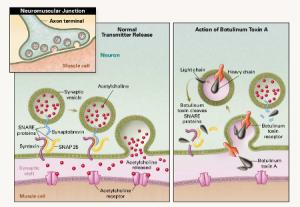 Kết quả hình ảnh cho botulinum toxin type mechanism